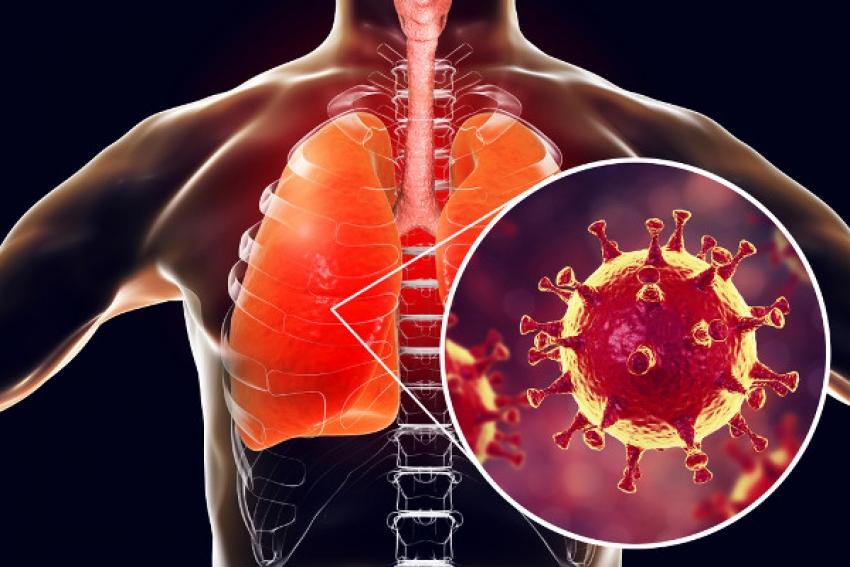 Pedro Leopoldo tem 12 óbitos por coronavírus